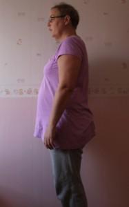 kortison svullen mage